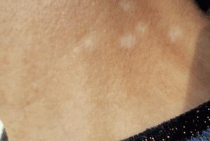 Dit is een foot van een hals, dichtbij genomen. Een hals van een vrouw, ze heeft witte vlekken, zonneschade. Ook dat kan worden weggewerkt bij Permanent Mooi. Litteken inkleuren
