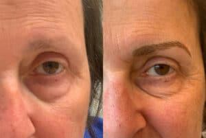Dit is een afbeelding van voor en na een behandeling van ogen, de wenkbrauwen hebben uiteindelijk permanente make-up, door Permanent Mooi